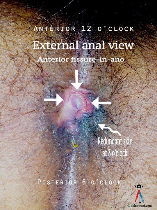 Naked models having sex XXX